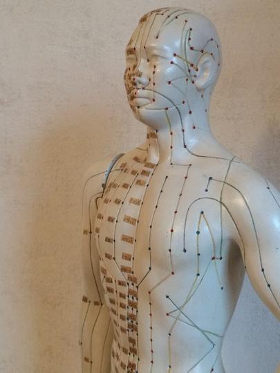 Pijnbehandeling met Acupunctuur